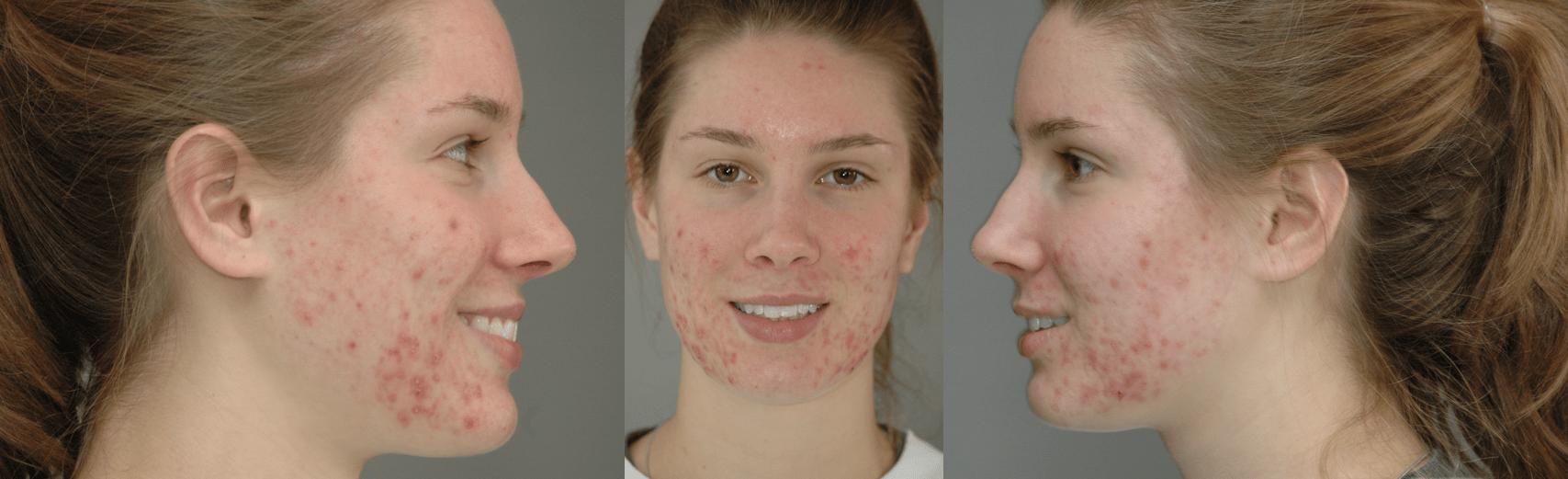 My acne tri
